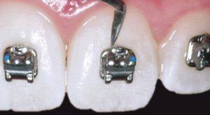 Descubre cómo colocamos los brackets en Clínica Dental Kaizen
