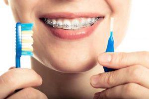En Clínica Kaizen resolvemos tus dudas de higiene dental durante tu ortodoncia