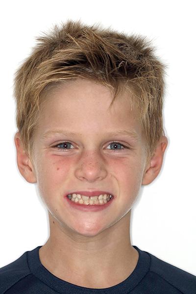 Casco clínico Lucas